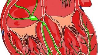 特発性(とくはつせい)拡張型心筋症(DCM:dilated cardiomyopathy)